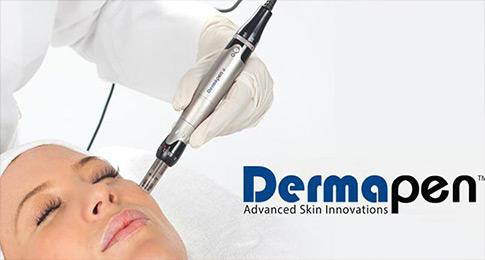 Dermapen-microneedling-tretman